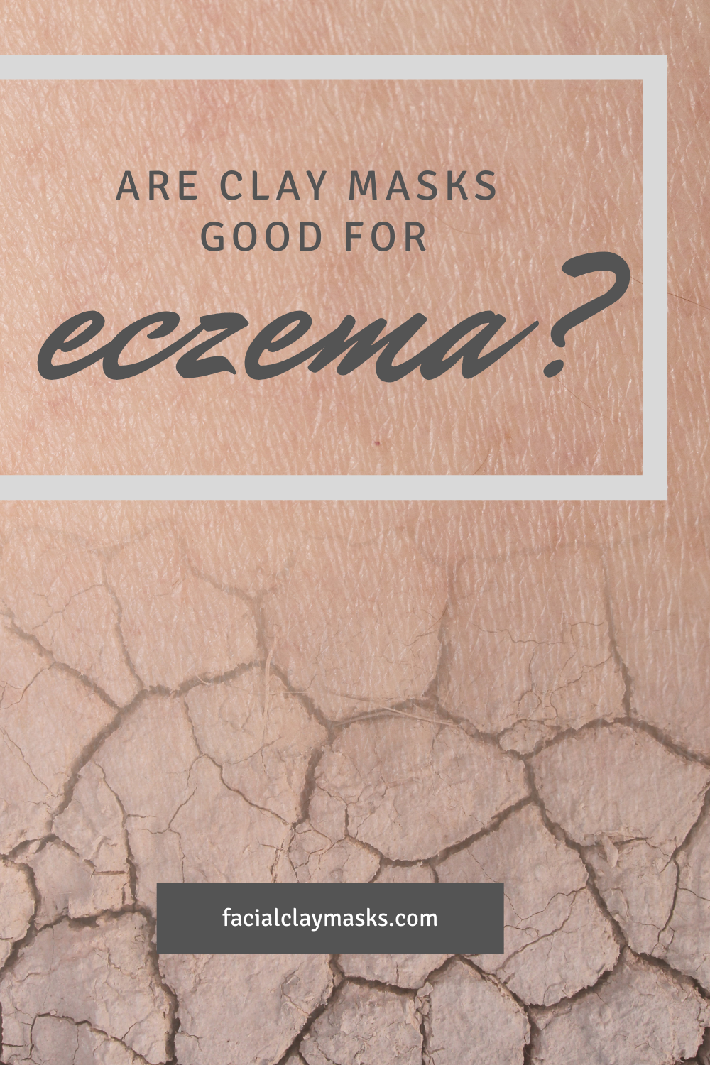 Are clay masks good for Eczema? 1