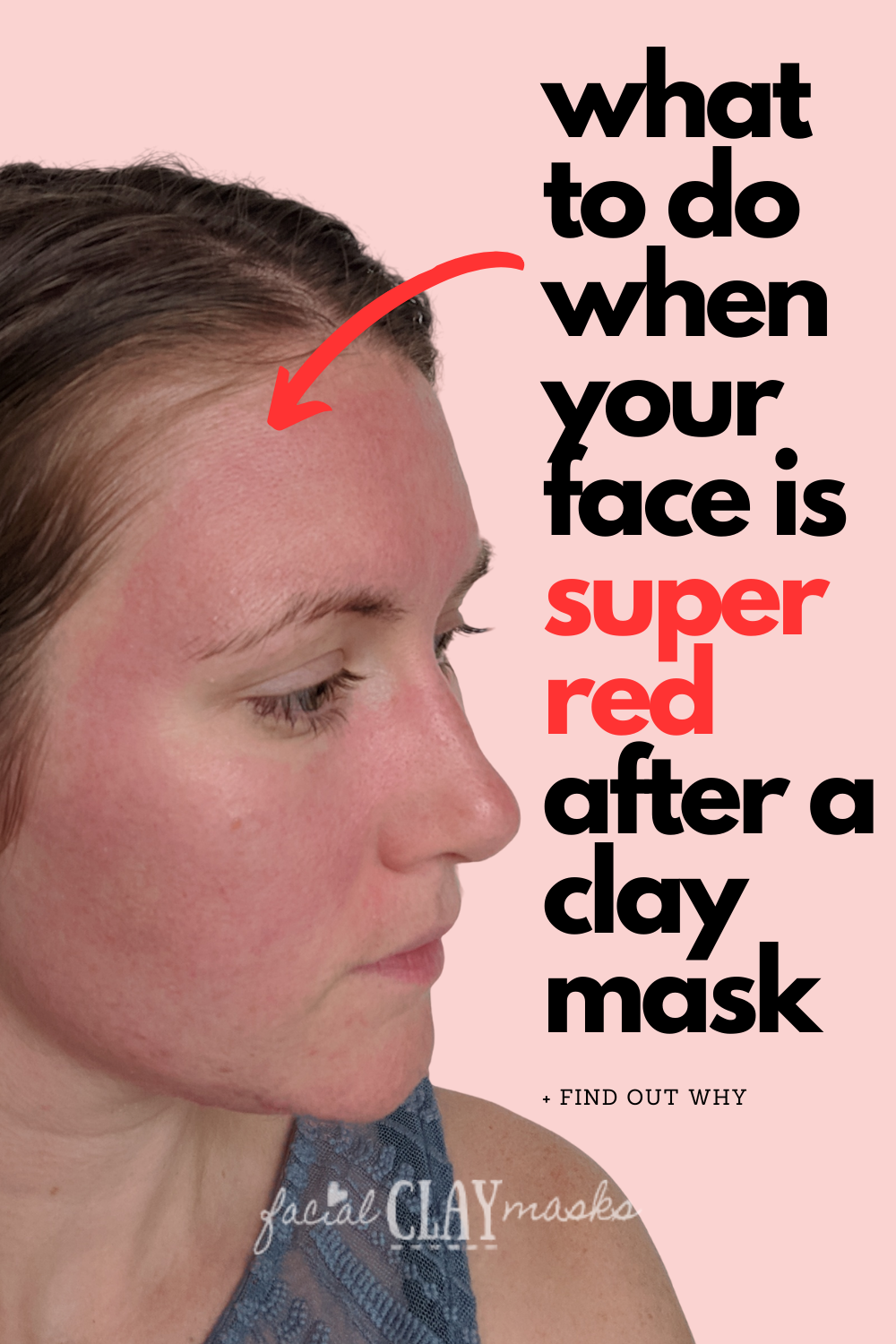 Is Redness after a Clay Mask normal? 1