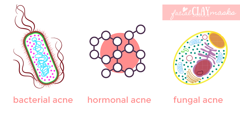 Acne 101: What are the Different Types of Acne? 8