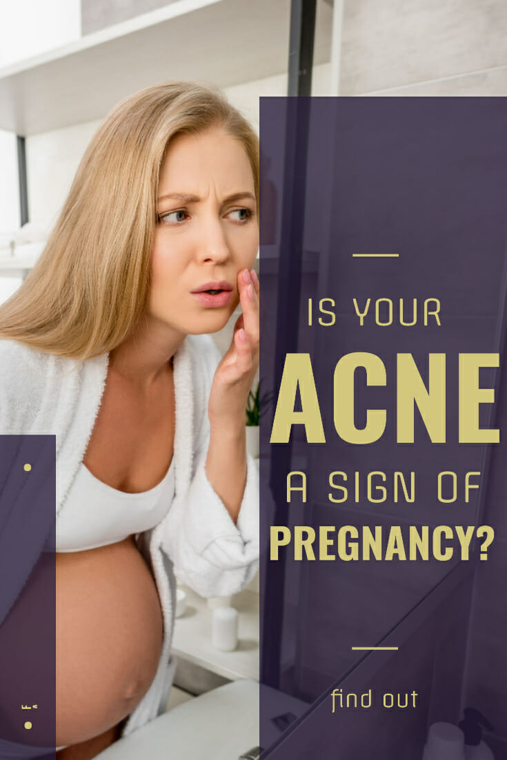 Is Acne a Sign of Pregnancy