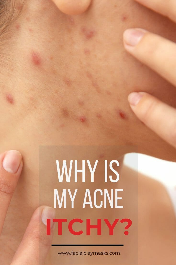 Why is my acne itchy